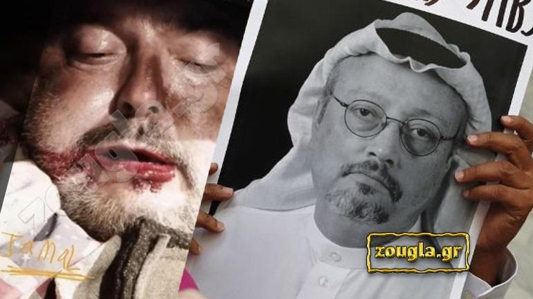 7b91eb337cc7 Φωτογραφία-μυστήριο που απεικονίζει τον Τζαμάλ Κασόγκι αιμόφυρτο και με  μισόκλειστα μάτια