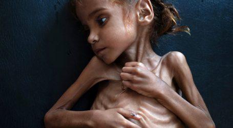 Πέθανε σε ηλικία επτά ετών το κορίτσι που αναδείχθηκε σύμβολο του λιμού