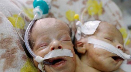 Πέθαναν τα σιαμαία βρέφη που νοσηλεύονταν σε νοσοκομείο της Σαναά