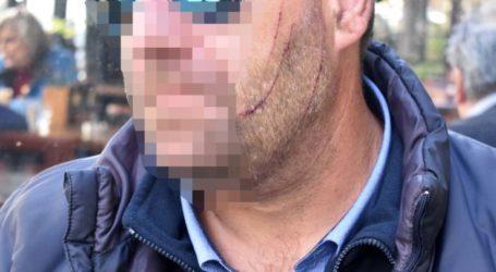 """""""Θέλεις να πεθάνεις σήμερα;"""" – Η μαρτυρία του Λαρισαίου οδηγού του αστικού για την επίθεση που δέχθηκε (φωτό)"""