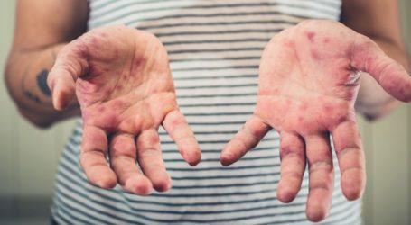 Έξαρση ιλαράς στην Ευρώπη