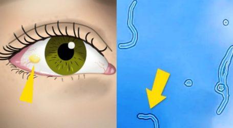 """Τι σημαίνουν τα περίεργα διαφανή """"σκουλήκια"""" που πολλές φορές βλέπουμε να αιωρούνται μπροστά στα μάτια μας"""