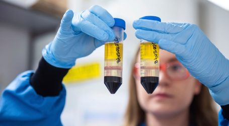"""Ο εμβολιασμός κατά του Covid-19 είναι """"απίθανο"""" να γίνει υποχρεωτικός, τουλάχιστον στην πρώτη φάση"""