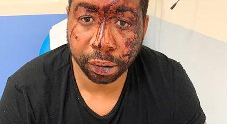 Σε διαθεσιμότητα αστυνομικοί μετά από επίθεση εναντίον μαύρου μουσικού