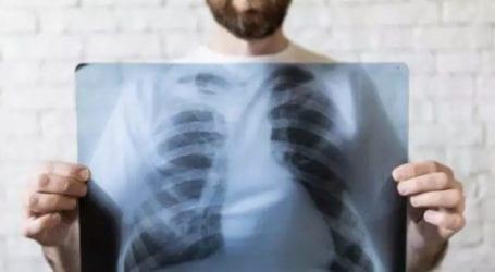 «Ιατρείο Προσυμπτωματικού Ελέγχου του Καρκίνου του Πνεύμονα» θα λειτουργήσει στη Λάρισα