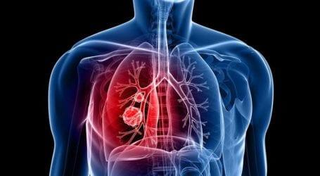 Ημερίδα με θέμα τη σύγχρονη αντιμετώπιση της Πνευμονικής Ίνωσης από την Πανεπιστημιακή Πνευμονολογική Κλινική Λάρισας