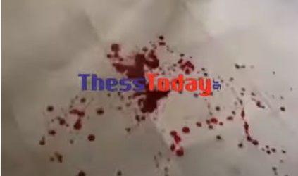 Σταυρούπολη – Σοκαριστικές εικόνες με αίματα στους διαδρόμους του ΕΠΑΛ