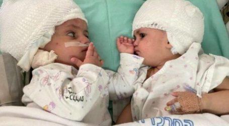 Σπάνια εγχείρηση – Σιαμαία ενωμένα στο κεφάλι κοιτάχτηκαν για πρώτη φορά