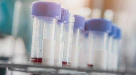 Novartis – Επενδύει στην έρευνα 9 δισ. ευρώ, 6 εκατ. στην Ελλάδα